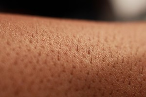 penyakit kulit , Psoriasis, obat psoriasis