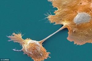 Kanker Pankreas, gejala  Kanker Pankreas, test  Kanker Pankreas, kesehatan