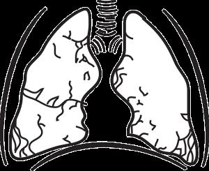 Kanker Paru-paru, telomere, kanker,