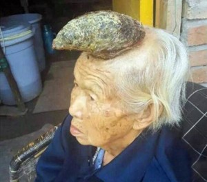 Berawal Dari Tahi Lalat, Nenek Ini Kemudian Miliki 'Tanduk' Raksasa di Kepala