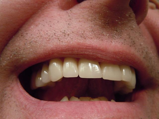 Gigi, Permen Bebas Gula , kerusakan gigi