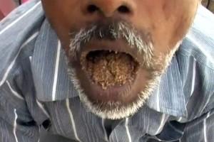 pica, Hans Raj, india, pria pemakan pasir