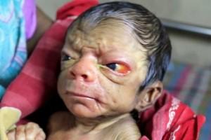 Magura, Bangladesh, progeria, bayi tua