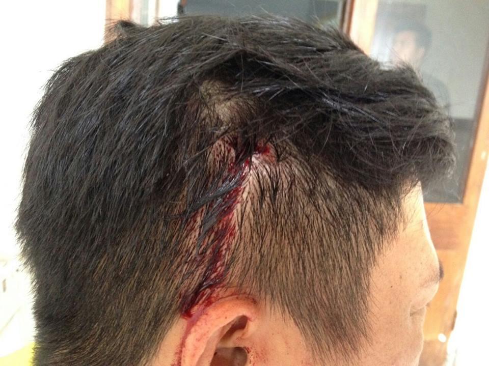 Luka sobek di bagian kanan kepala korban