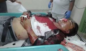 Jeidy Kaparang, korban tabrakan maut di ruas jalan Mokupa