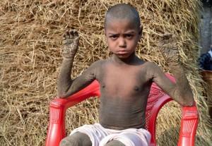 Bocah 8 Tahun Punya Penyakit Aneh yang Rubah Kulitnya Jadi 'Batu'