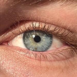 Operasi Laser mata, mata biru, Stroma Medical,