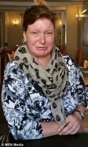 Terkena Penyakit Langka, Cate Tidak Bisa Tersenyum Selama 34 Tahun
